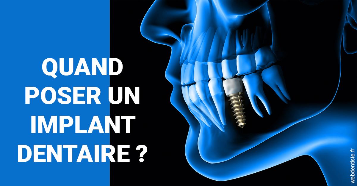 https://www.lesdentslavie.org/Les implants 1